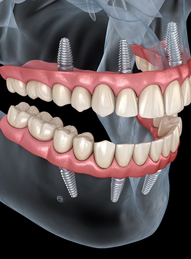 a computer illustration of two arches of implant-retained dentures