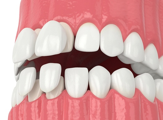 Digital image of the top and bottom porcelain veneers being placed