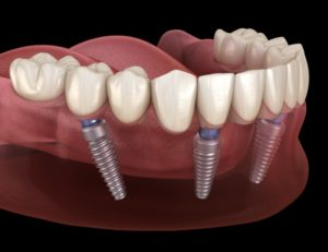 dentures on bottom arch held in place by dental implants in Moses Lake