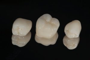 three dental crowns in Moses Lake against black background